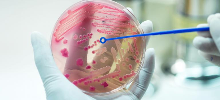 Whole genome sequencing shows promise in fight against AMR